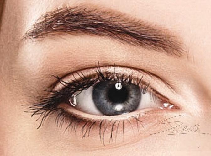 Upper eyelid - Parallel fold - Blepharoplasty - Double eyelid surgery