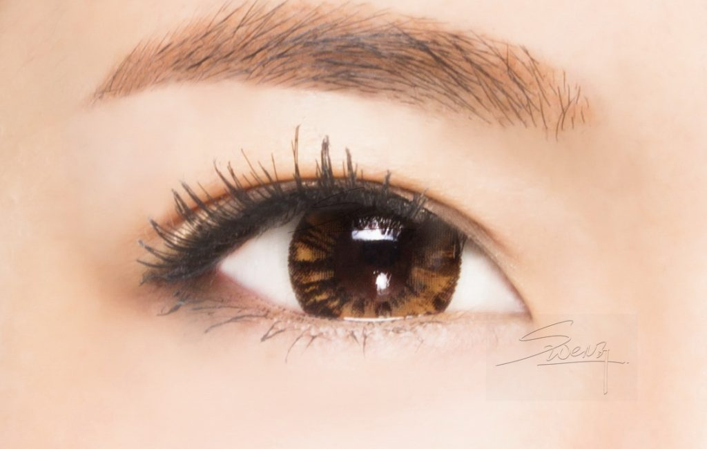 Upper eyelid - Low in-fold - Blepharoplasty - Double eyelid surgery