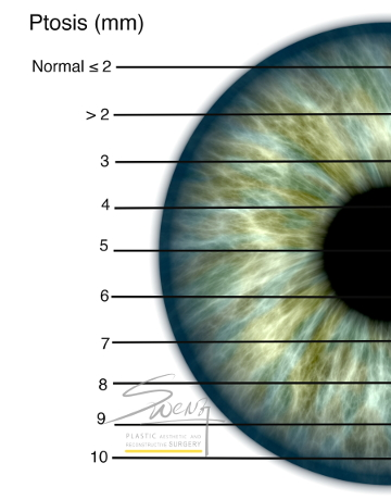 Ptosis Assessment by Coverage of Limbus - Droopy eyelid
