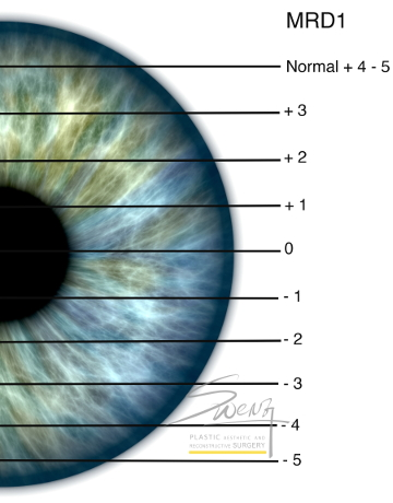 Blepharoptosis Assessment by MRD for droopy eyelid