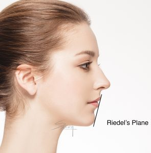 Facial Proportion - Chin - Rhinoplasty