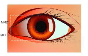 Blepharoptosis Assessment - MRD measurement for droopy eyelid
