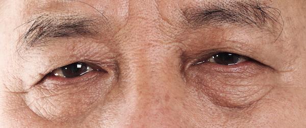 Eyebag - removal surgery