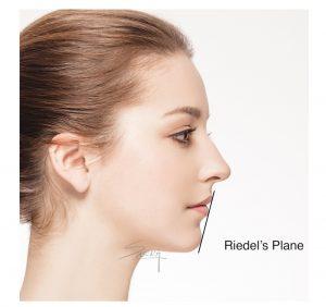 Facial Proportion - Chin - Rhinoplasty