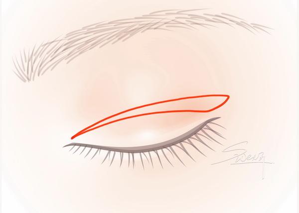 Incisional Blepharoplasty - Double eyelid surgery