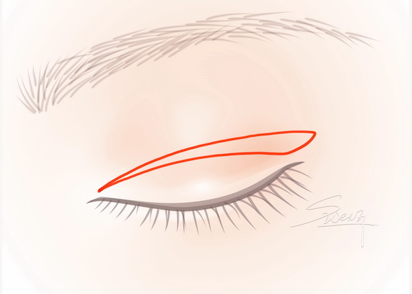 Incisional Blepharoplasty - Double eyelid surgery