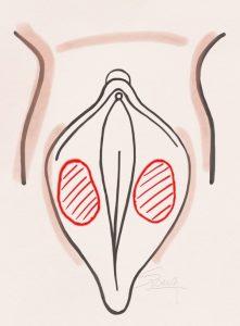 Labiaplasty - De-epithelialization method