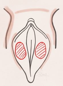 Labiaplasty - De-epithelialization method