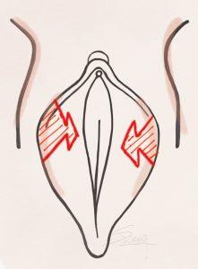 Labiaplasty - Z Plasty Method