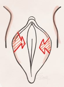 Labiaplasty - Z Plasty Method