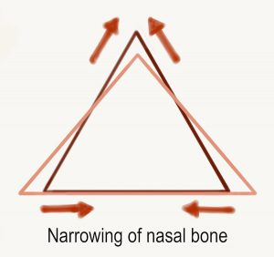 Rhinoplasty - osteotomy - narrowing of nasal bone triangle during nose job