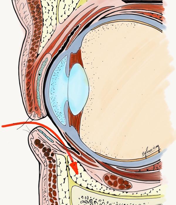 Lower blepharoplasty - Transconjunctival - Scarless Eyebag Removal