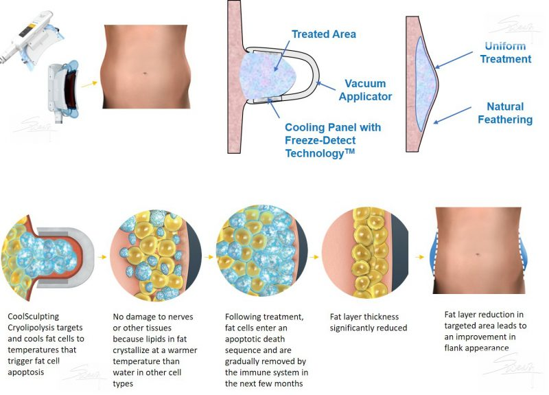 Coolsculpting - Cryolipolysis - Slimming Weight Loss - Mechanism of Fat Freeze