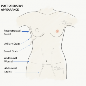 Breast Reconstruction - TRAM Flap - Post operative appearance with drains - breast cancer surgery