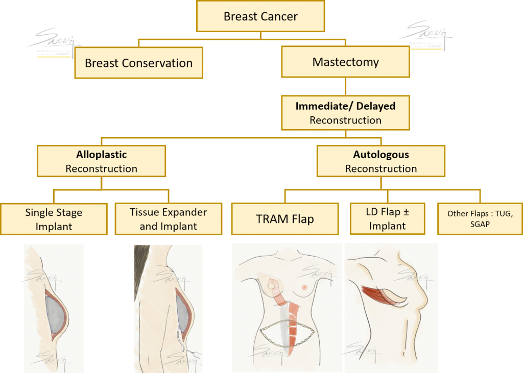 Breast Reconstruction Protocol - best options after breast cancer surgery