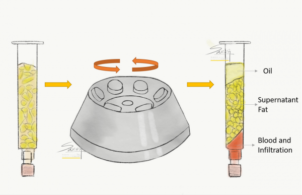 Centrifugation to separate fats harvested