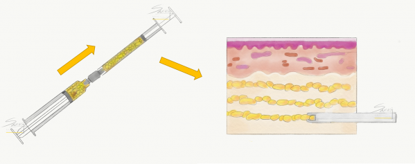 Fat injection in small parcels in layers to ensure maximal survival