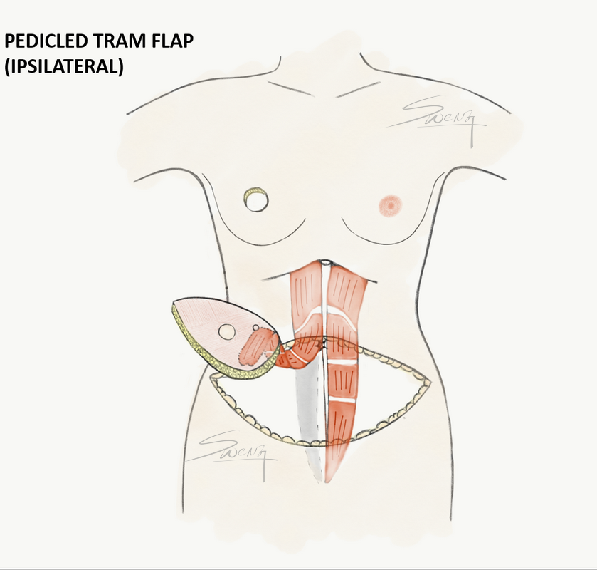 Pedicled TRAM flap harvest after mastectomy for immediate breast reconstruction - breast cancer surgery